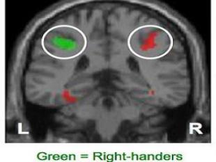 Linkshandigen hebben andere hersens dan rechtshandigen