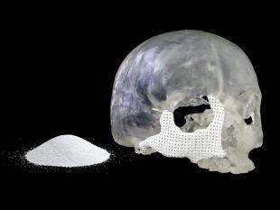 Rapid Prototyping: 3D oplossingen voor medici en onderzoekers