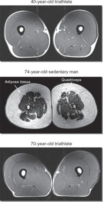Drie MRI-scans van de bovenbenen.