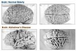 Gezonde hersenen hebben een dichtere structuur dan door Alzheimer aangetaste hersenen